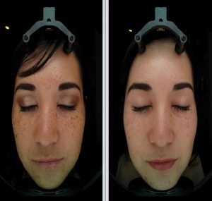 BEFORE AND AFTER HYPERPIGMENTATION