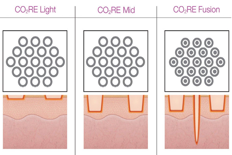 Co2re Laser Resurfacing