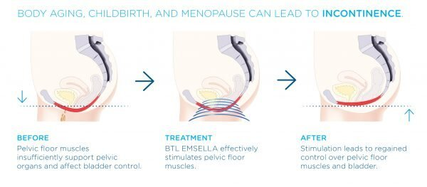 Incontinence Treatment with Emsella